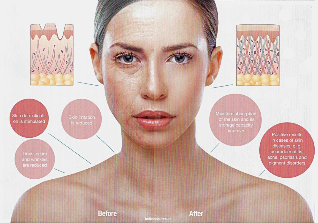 Collagen Light Therapy - Stay Young and Healthy.